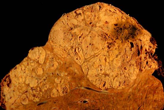 hepatocellular cancer of the liver