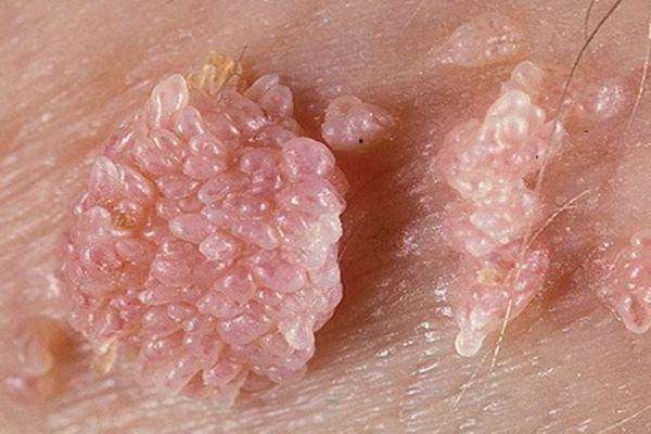 cara menghilangkan kutil papilloma