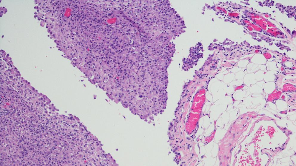 cancer peritoneal esperanza de vida 2019