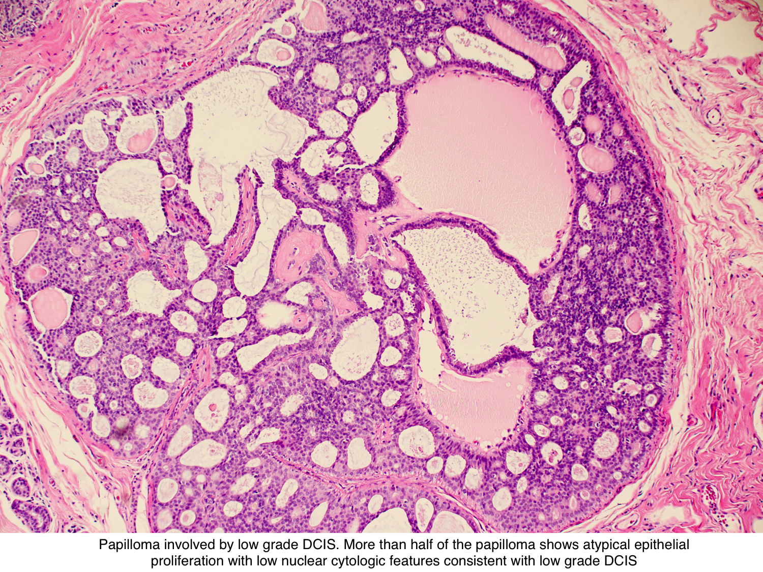 intraductal papilloma and dcis