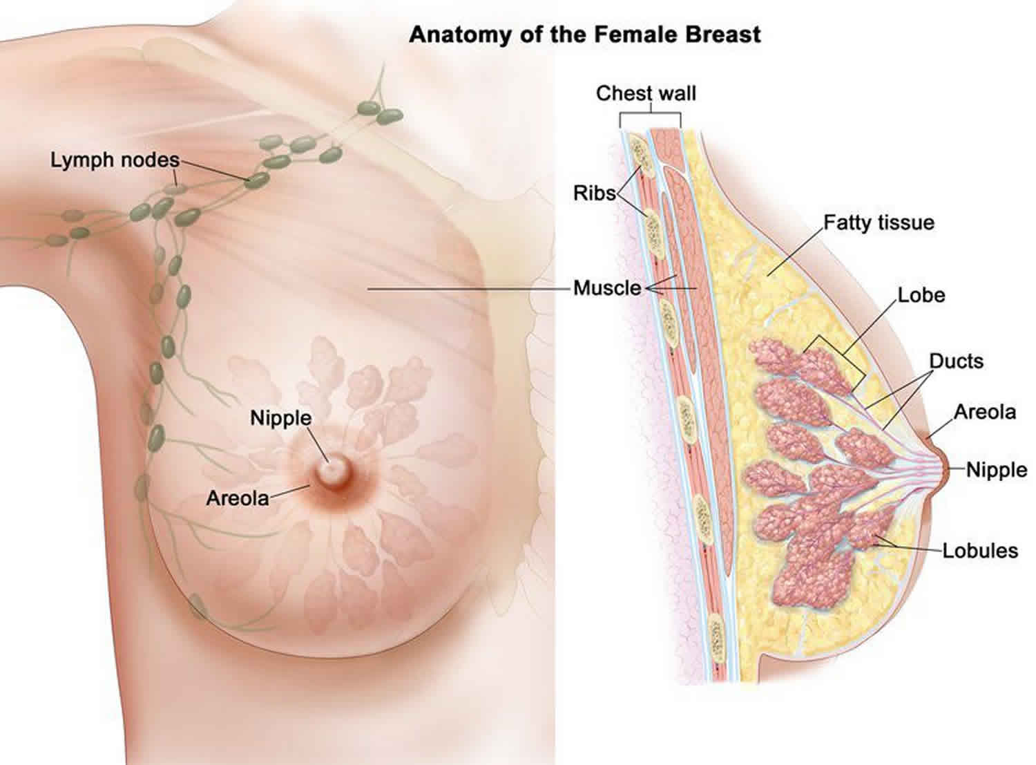 what causes papilloma of the breast