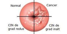 cancer de col uterin ultimul stadiu