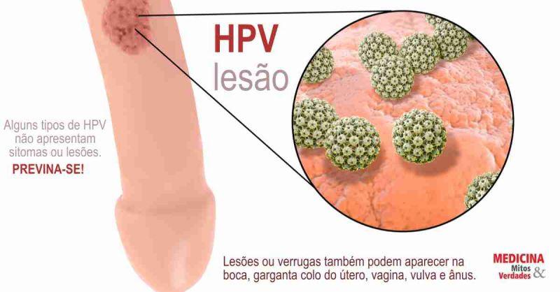 virus del papiloma nic 1)