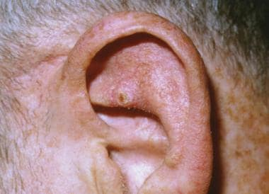 squamous papilloma in ear