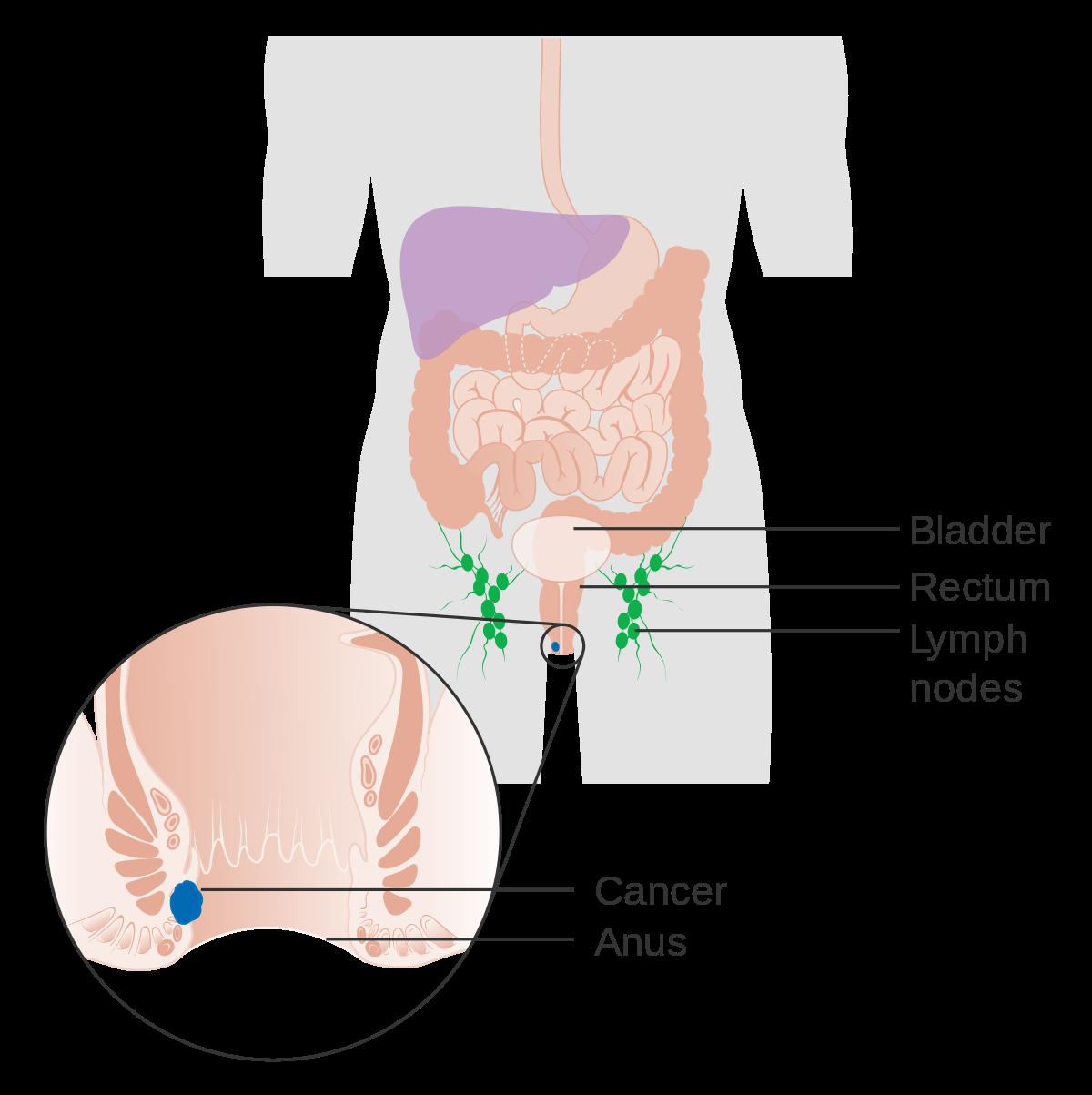 hpv cancer simptome)