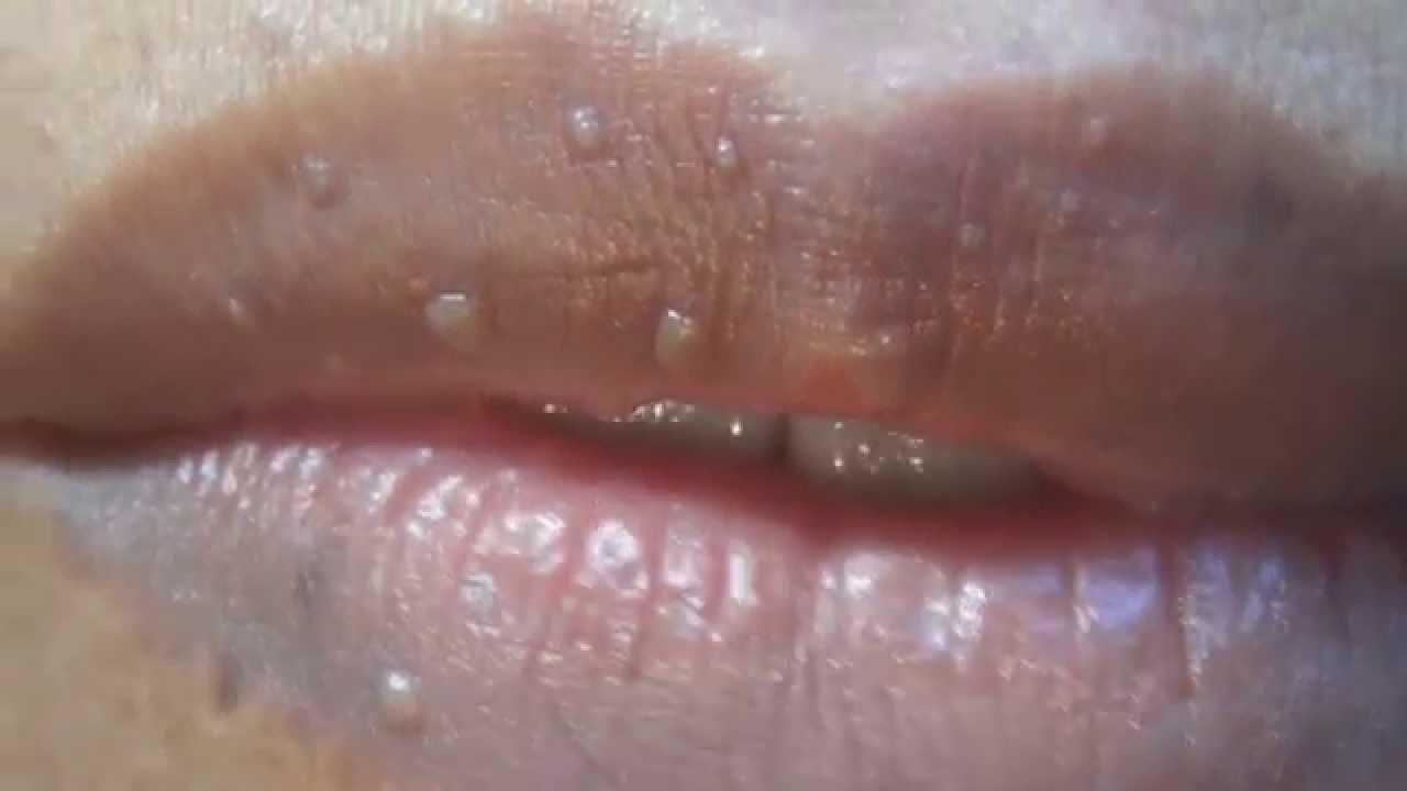papiloma de labial