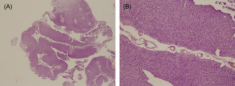 papillary urothelial neoplasm of low malignant potential histology)