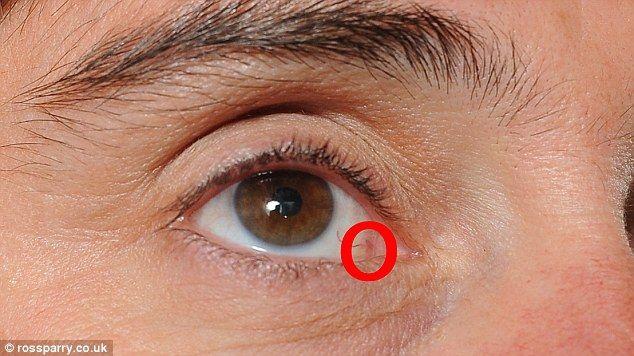 cancerul la ochi