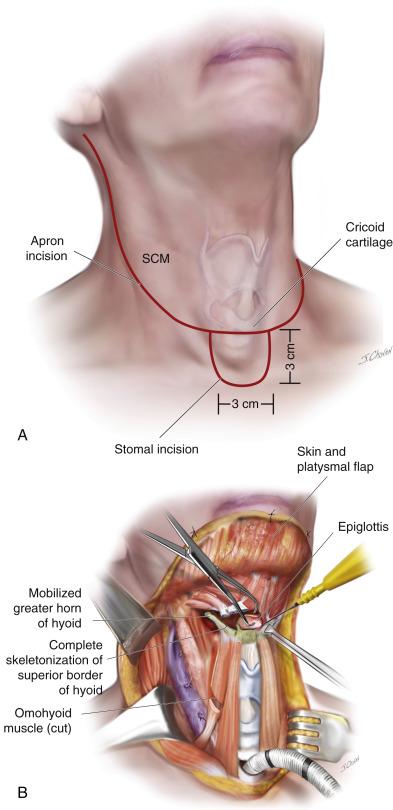 sarcoma cancer month papillomavirus cancer genital