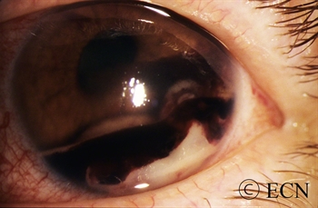 metastatic cancer eye)