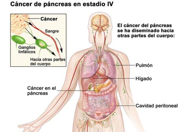cancer de pancreas organos que afecta)