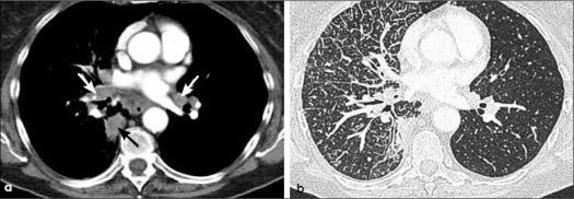 cancer pulmonar tomografia)