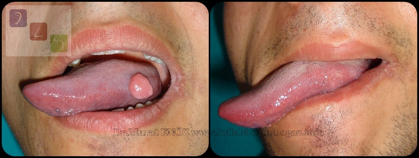 wart tongue pain