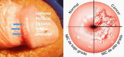 papiloma humano virus en ingles