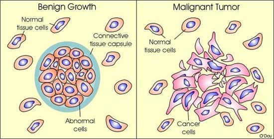 cancer benign or malignant