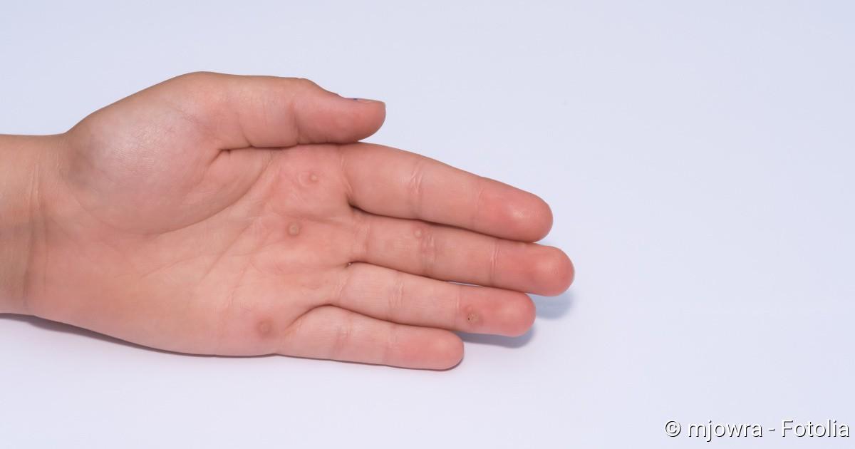 hpv warze hand