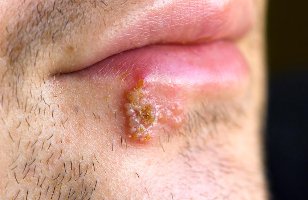 herpes papiloma virus