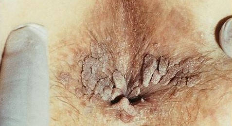 tratament papiloma virus barbati)