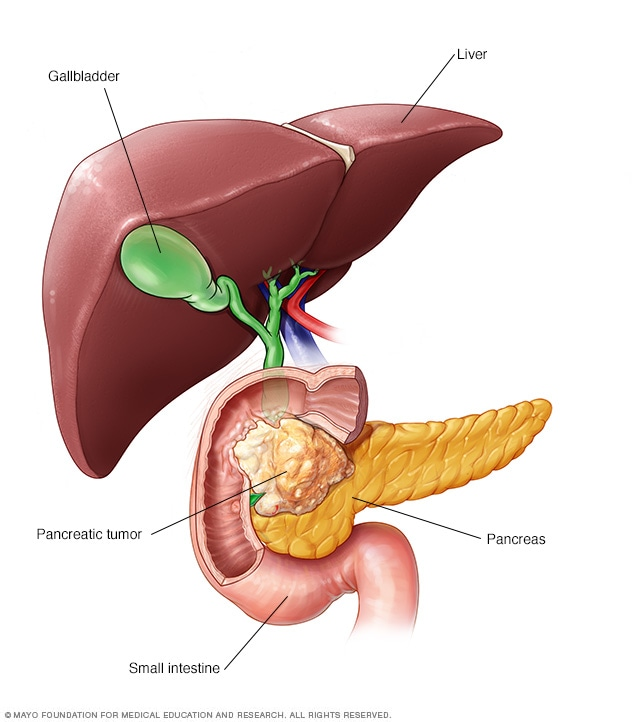 cancer pancreas duodeno)