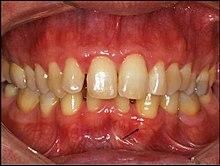 gingival papillomas