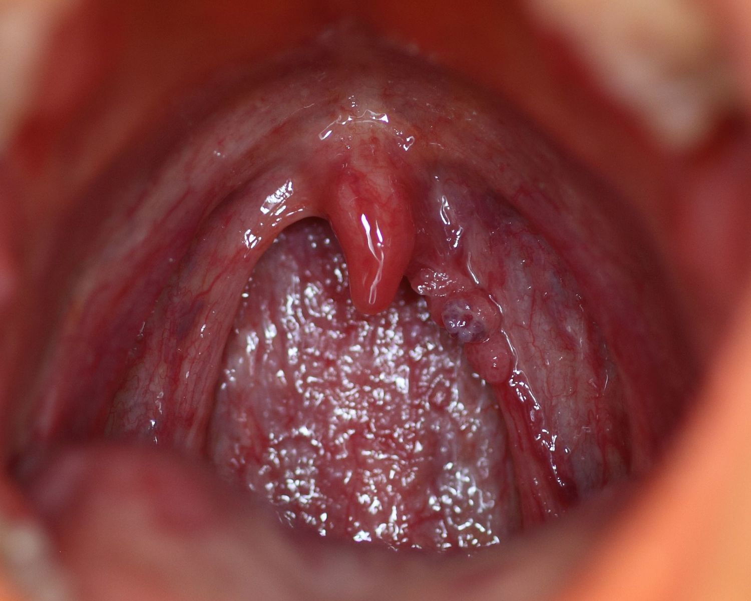papilloma mouth symptoms