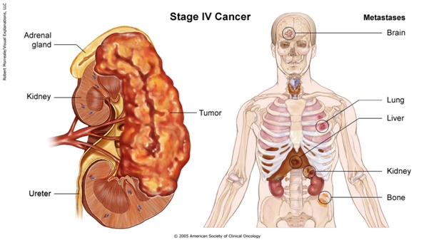 cancer of renal gland hpv cancer curable
