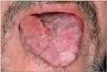 Boala lui Bowen - cauze, simptome, tratament, prognostic, fotografii