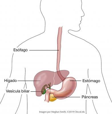 cancer caile biliare