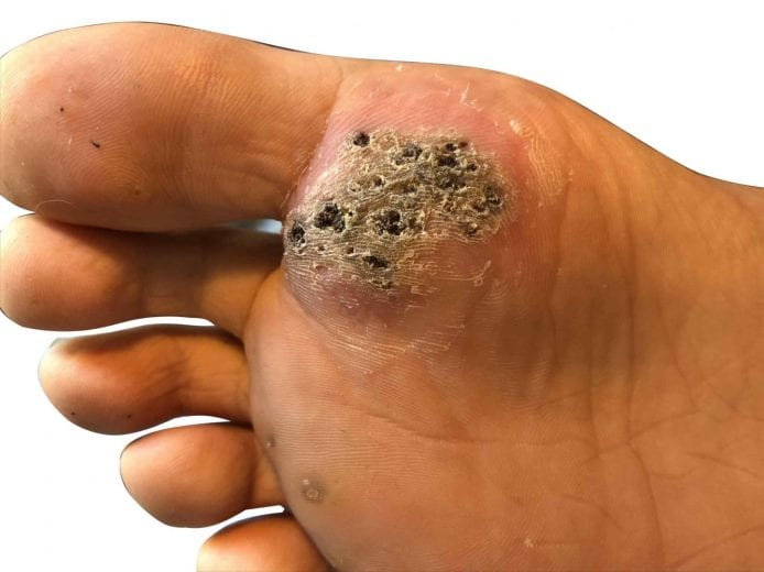 wart on foot thumb)