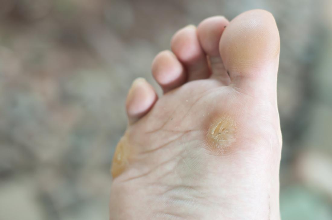 human papilloma virus that causes plantar warts hpv virus how to get rid