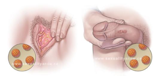 virus del papiloma en la mujer)