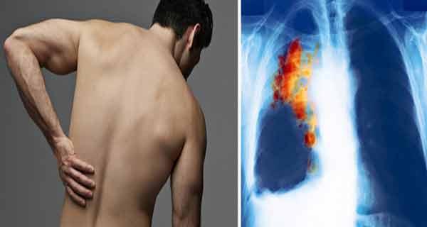 Cancer Pulmonar (cancer la plamani) - Simptome & Tratament | evenimente-corporate.ro