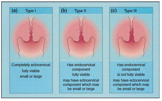 cancer de col uterin stadiul 2 b