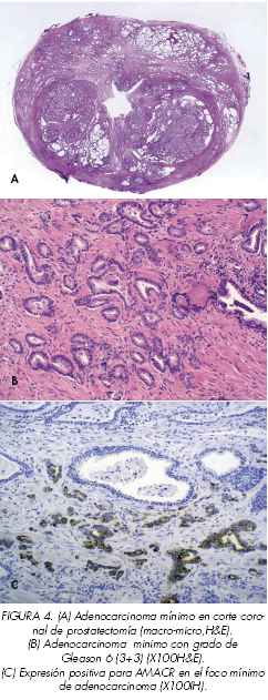 cancer de prostata patologia