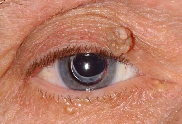 papilloma in corner of eye)