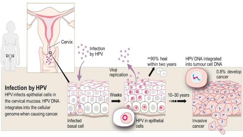 hpv develop into cervical cancer