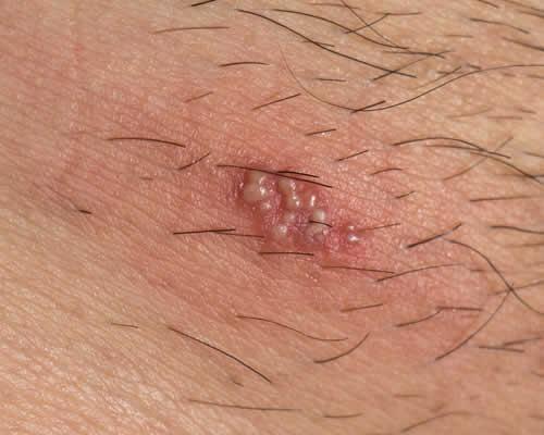 papilloma virus esterno)