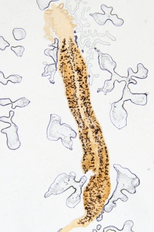 tipuri de viermi intestinali la copii papilloma alla vescica uomo