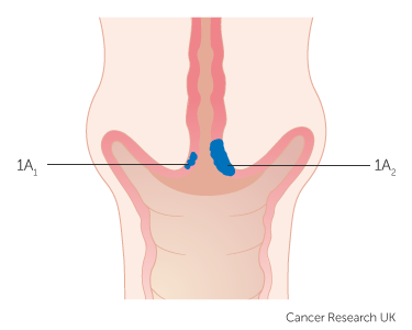 cervical cancer treatment stage 1