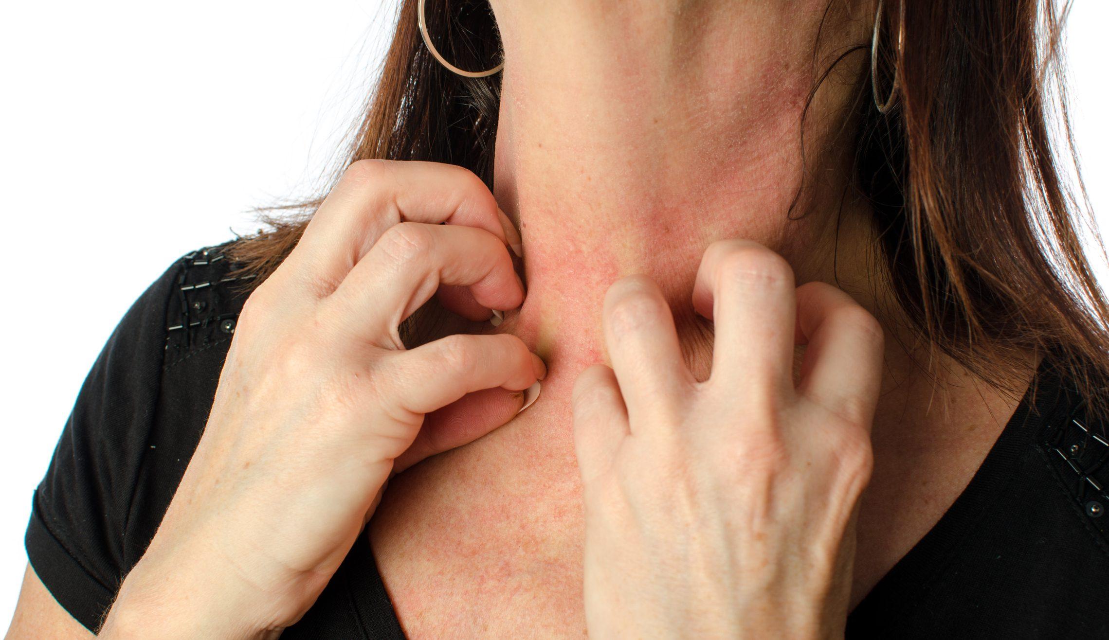 dermatite zona pelviana