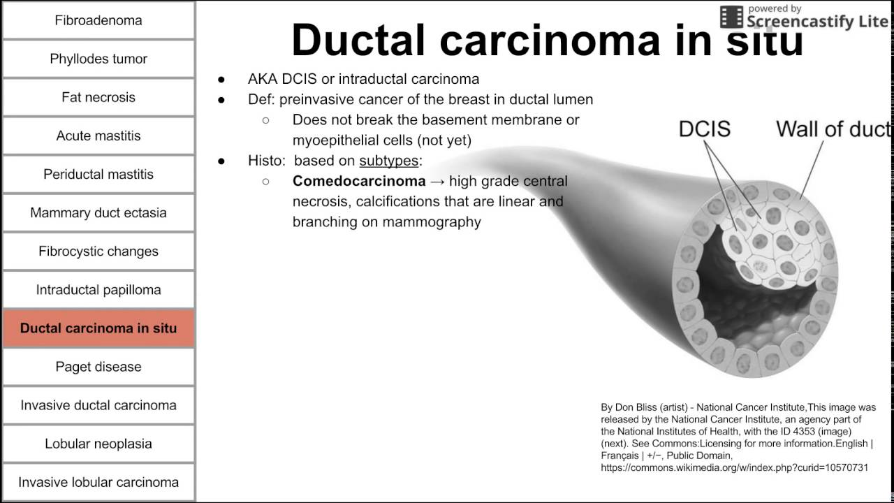 papilloma of breast treatment