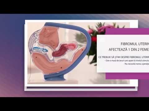 cancerul si fibromul uterin