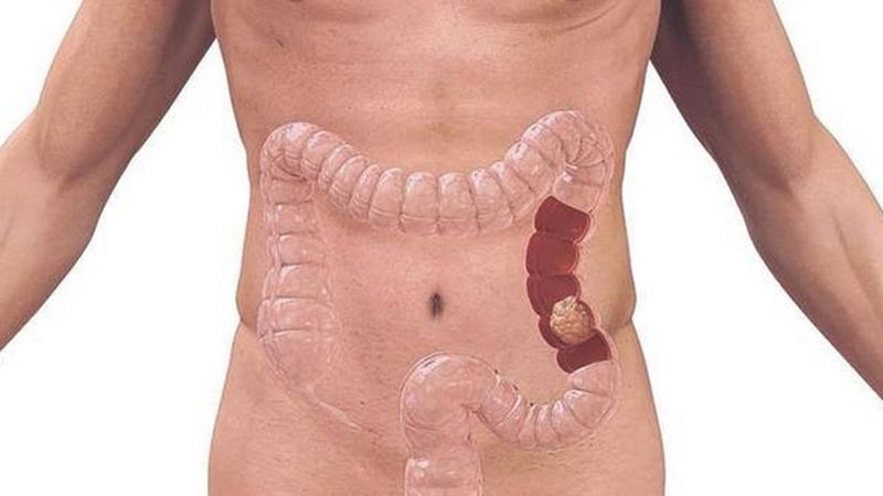 cancerul de colon simptome)