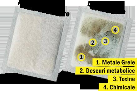 detoxifiere cu plasturi pareri)