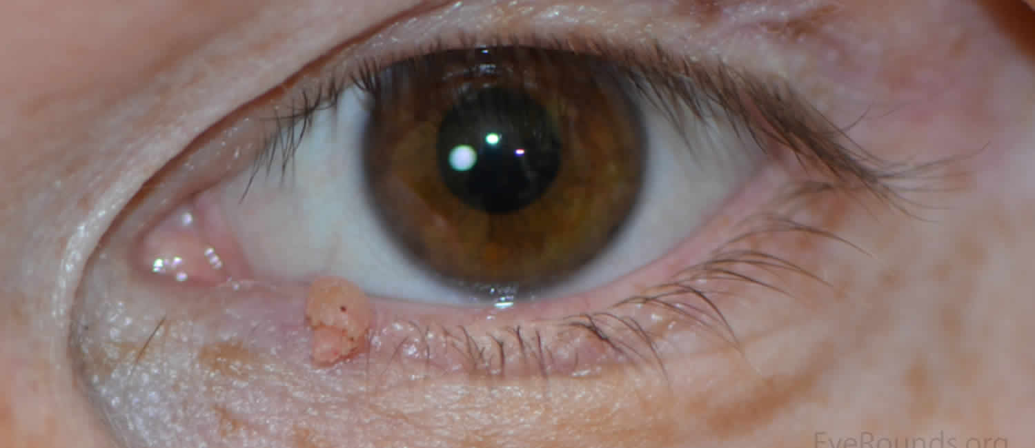 papilloma eyelid treatment