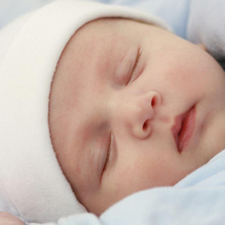 dermatite atopica neonato