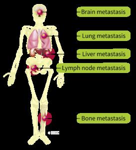 cancer renal stadiul 1)