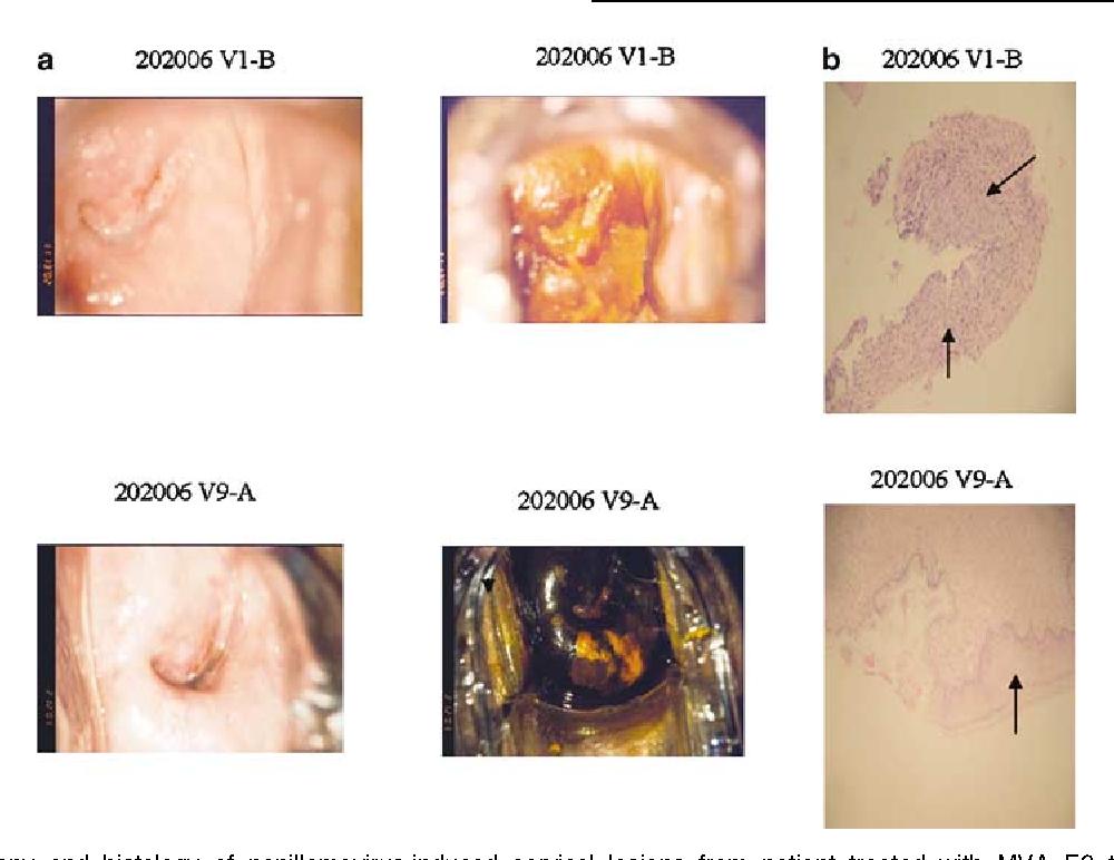 papillomatosis cervix)
