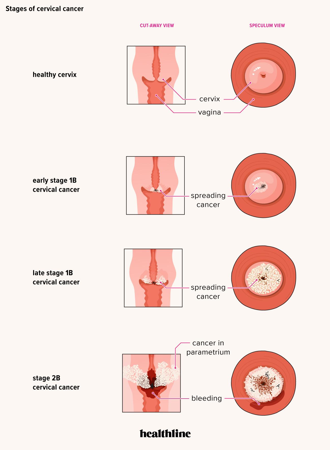 hpv cervical cancer symptoms