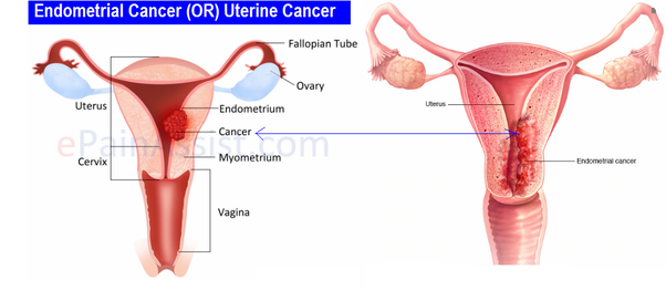 uterine cancer before menopause)